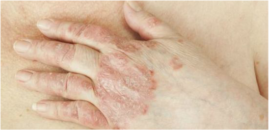 skin problems caused by autoimmune disease treatment in Kelowna